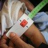 قياس ذراع طفل يبلغ من العمر سبعة أشهر، في اليمن، للتحقق من معانته من سوء التغذية. لقد أدى الصراع المستمر إلى انتشار انعدام الأمن الغذائي في جميع أنحاء البلاد، مما تسبب في إصابة آلاف الأطفال بسوء التغذية الحاد والشديد.