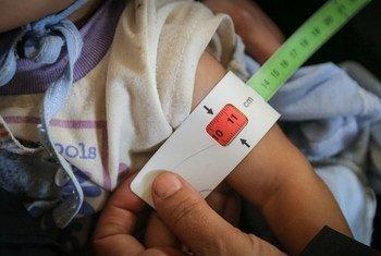 Bebê de sete meses, no Iêmen, faz o teste para verificar se há desnutrição. O conflito na região gerou insegurança alimentar generalizada em todo o país, deixando milhares de crianças gravemente desnutridas