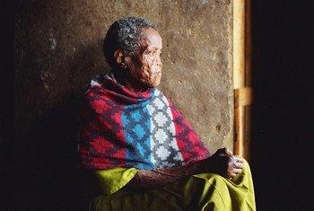 Une personne affectée par la lèpre à Addis Abeba, en Ethiopie (photo d'archives).