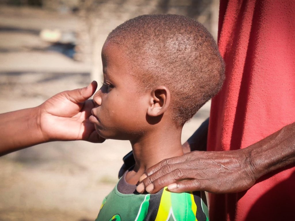 Aniso est né avec le VIH. Elle a des problèmes avec les traitements parce qu'elle est sous-alimentée