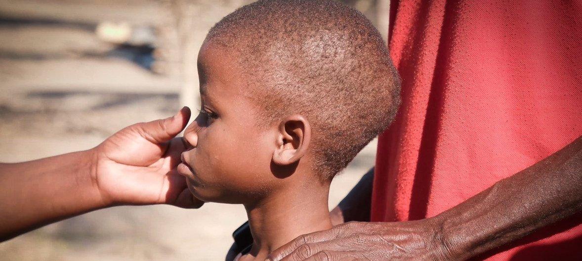 Anisio, que nació con VIH tiene problemas con los tratamientos porque sufre de malnutrición.