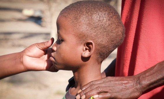Anísio, que nasceu com HIV, tem problemas com o tratamento devido a subnutrição