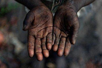 Les mains sales de Tololi Fufu, 6 ans. Il travaille à mains nues sur un site de production artisanale de charbon de bois (Kamuni, Zambie, novembre 2015).