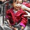 A malnourished Afghan child