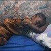 A child sleeps under a malaria bednet