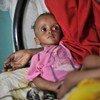 This young Somali was suffering from severe malnutrition after fleeing home with his parents