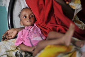 Un jeune Somalien souffrant de malnutrition sévère.