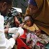 Un enfant malnutri reçoit des soins à Mogadiscio, en Somalie.