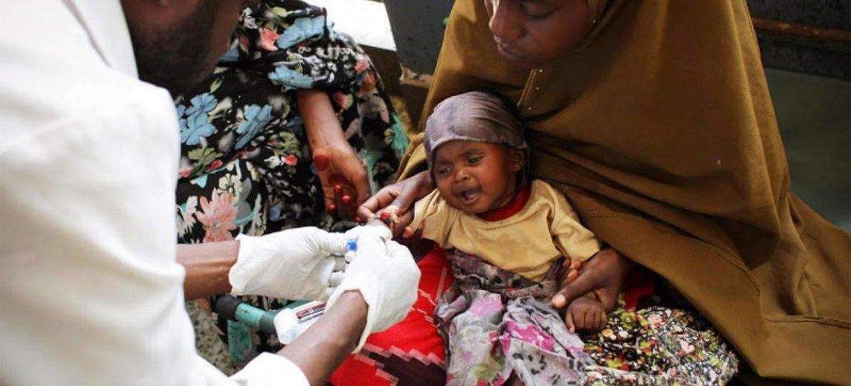 Malnourished child receives medical assistance in Mogadishu, Somalia