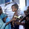 Child's arm being measured to assess his nutritional state at a feeding centre in Dahakula village, Bangladesh.