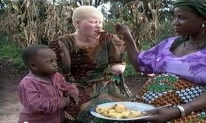 An albino woman in Tanzania who was brutally attacked due to rumors about their magical powers which are having deadly consequences.