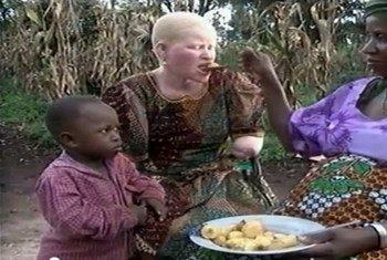 Una mujer albina en Tanzania victima de ataques  Foto; UNTV