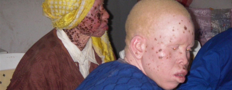 Devido à falta de melanina as pessoas com albinismo são altamente vulneráveis a adoecer de câncer de pele