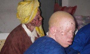 Albinos.