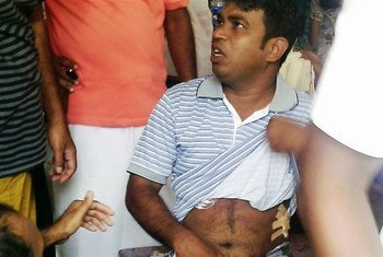 A man injured in communal violence between Muslims and Buddhists in Sri Lanka.