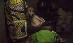 Severely malnourished refugee child from the Central African Republic at a feeding centre in Batouri hospital, Cameroon.
