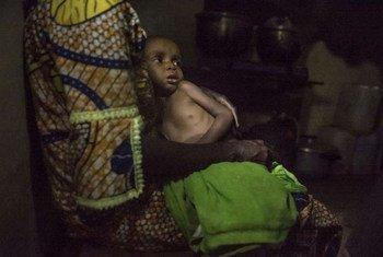 Niños desnutridos de la República Centraofricana refugiados en Camerún  Foto.ACNUR/F.Noy