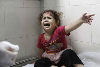 A little girl cries as medics attend to her injuries at al-Shifa hospital, Gaza City (18 July 2014).