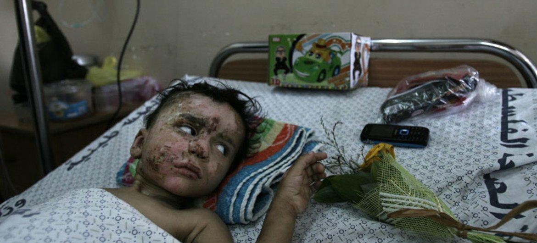 Niño ingresado en un hospital en Gaza. Foto de archivo: UNICEF/El Baba
