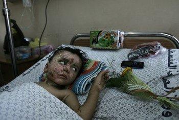 Un enfant blessé à l'hôpital Al-Shifa à Gaza. Photo UNICEF/El Baba
