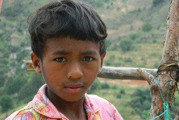 Un enfant malgache ayant survécu à la peste bubonique après avoir été infecté en 2011. (archives)