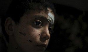 Un enfant syrien blessé.