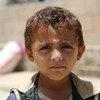 Millones de niños yemenitas en riesgo de desnutrición y enfermedades. Foto de archivo: OCHA/Charlotte Cans