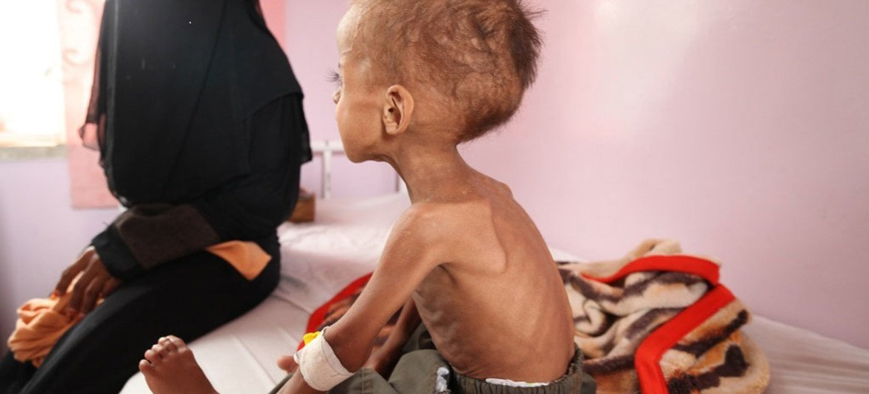 Faisal, un niño yemenita de año y medio, recibe tratamiento por desnutrición aguda en un hospital de Sana´a. Foto: UNICEF/UMI191723/Yasin