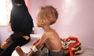 Faisal, 18 months old is treated for severe acute malnutrition at Sabeen hospital in Yemen's capital Sana'a.