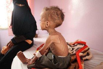 Âgé de 18 mois, Faisal est soigné pour malnutrition aigue à l'hôpital de Sabeen, à Sanaa, capitale du Yémen.
