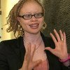 L'Experte indépendante de l'ONU sur la jouissance des droits humains par les personnes atteintes d'albinisme, Ikponwosa Ero,