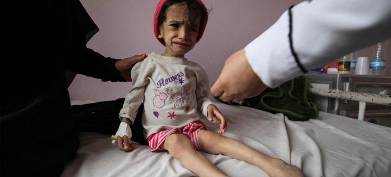 Niño con desnutrición recibe tratamiento en un hospital de Sana´a. Foto: UNICEF/ UNI191720/Yasin