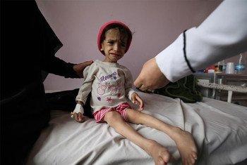 Une fillette de 2 ans malnutrie dans un hôpital à Sana'a, au Yémen. Photo UNICEF/Yasin