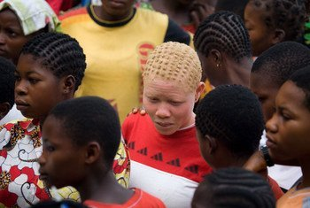 Jimboni Equateur nchini Jamhuri ya Kidemokrasia ya Congo, DRC, ulemavu wa ngozi ni jambo la kawaida na jamii hujumuika pamoja.
