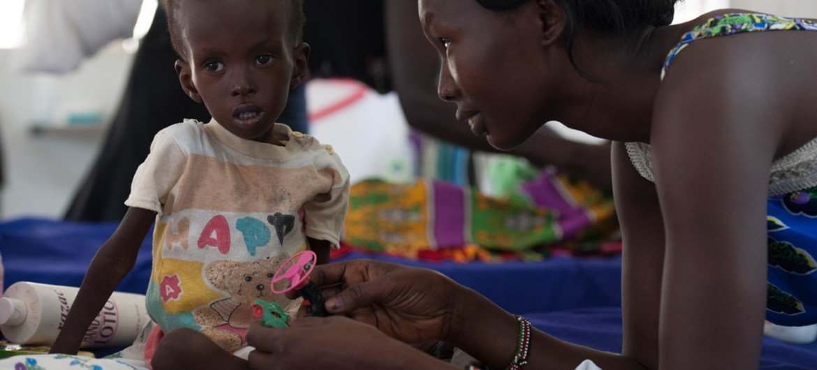 Two-year-old, Kuot is being treated for severe acute malnutrition, at the UNICEF-supported Al-Shabbah Children's Hospital, in Juba, South Sudan.