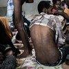 在利比亚首都附近的一个拘留中心里,一位逃离厄立特里亚的男子的背上伤痕累累。