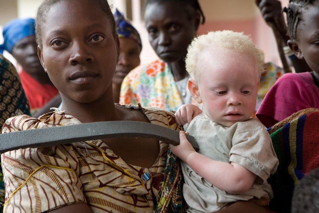 Une femme tient dans ses bras un enfant atteint d'albinisme à Goma, en République démocratique du Congo, en 2007. Photo ONU/Marie Frechon