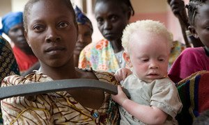A caregiver attends to an abandoned toddler with albinism in Goma, North Kivu, DRC. 07 September 2007,