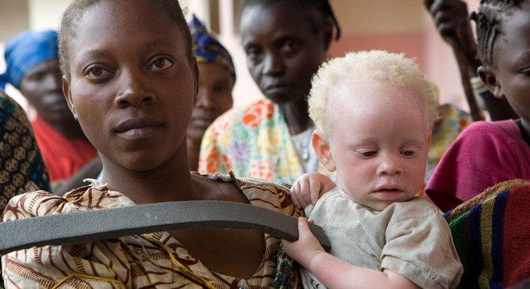 一位非洲妇女正在照看一名遭到遗弃的白化病儿童。