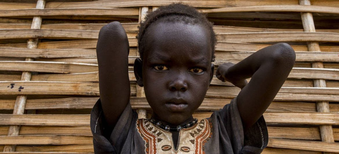 A child in South Sudan where conflict has dramatically worsened food insecurity.