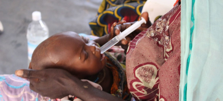 Niño afectado por desnutrición severa en un hopspital de Nigeria. Foto: OCHA/O.Fagan
