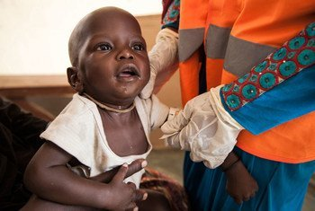 A 7 month old boy is assessed for malnutrition by a UNICEF Nutrition Officer at a UNICEF-supported health clinic at Muna Garage IDP camp, Maiduguri, Borno State, northeast Nigeria.