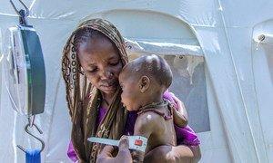 Un enfant de 11 mois se fait mesurer la circonférence de son bras pour détecter la malnutrition dans un camp de déplacés dans l'Etat de Borno, au Nigéria. Photo UNICEF/Esiebo