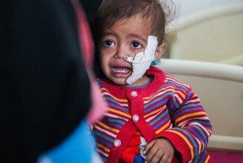 Больше всех от конфликта в Йемене страдают дети Фото ЮНИСЕФ