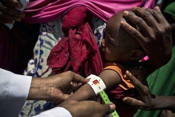 Дети Сомали - на грани истощения Фото ЮНИСЕФ/Хольт