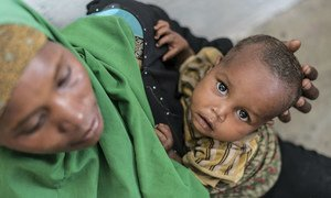 A young boy suffering from malnutrition is held by his mother at a UNICEF-supported Outpatient Therapeutic Program (OTP) in Baidoa, Somalia.