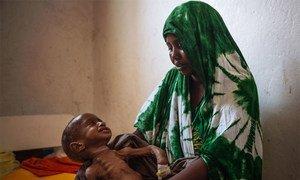 Un enfant de deux ans pleure sa mère à l'hôpital général de Kismayo en Somalie. Né avec une déformation, l'enfant souffre également de malnutrition. Photo OIM/Muse Mohammed