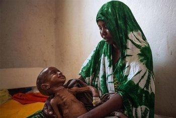 Двухлетний ребенок  на руках у матери  плачет  из-за недоедания. Фото  МОМ
