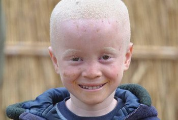 Children with albinism are often discriminated against and abused.