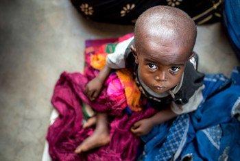 Un enfant souffrant de malnutrition attend d'être soigné dans un centre de santé dans la province du Kasaï oriental en République démocratique du Congo - une région en proie à un conflit entre la milice du chef traditionnel Kamuina Nsapu et les forces armées gouvernementales. © UNICEF / UN064921